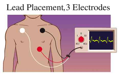 Aberrant Conduction moreover Ekg Lead Axis Diagram besides 12 Lead Ecg Lead Placement Diagrams likewise 24 Hour 14 Day Continuous Ecg Monitoring furthermore 12 Lead Ekg Diagram. on telemetry lead diagram